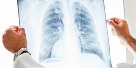 Vorsorge und Behandlung von Krebs